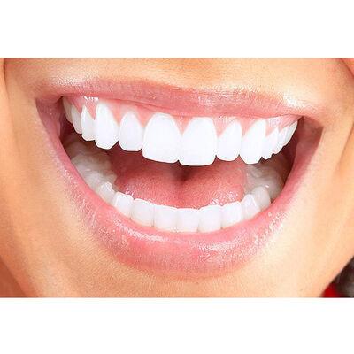 Limpieza dental + blanqueamiento en Clínica Odontológica Dentointegral, Providencia